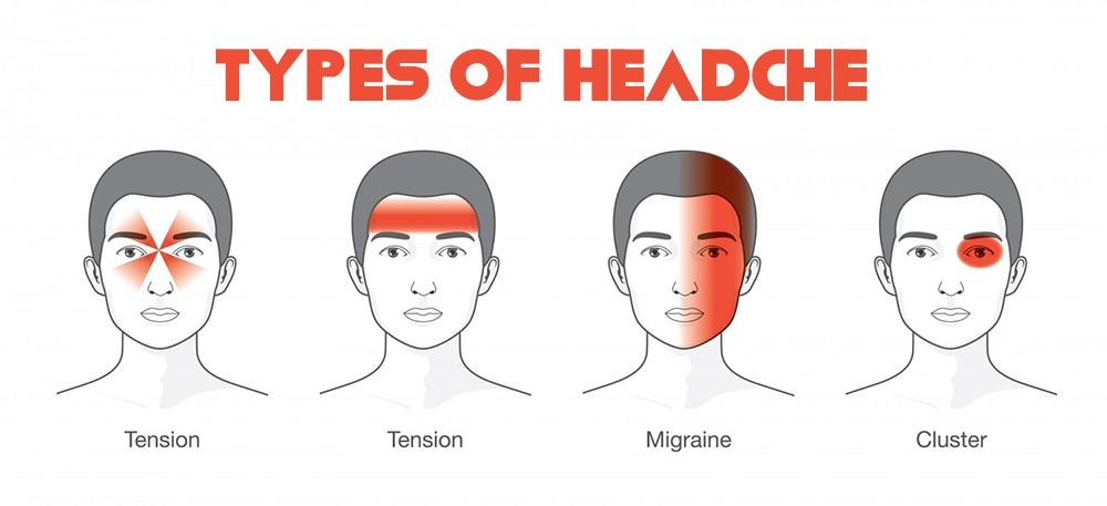 Difference-Between-Migraine-and-Tension-Headache