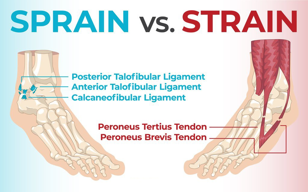 Difference-Between-Sprain-and-Strain